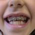 orthodontie-70